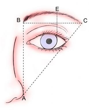 Direct brow lift. Ideal brow position.