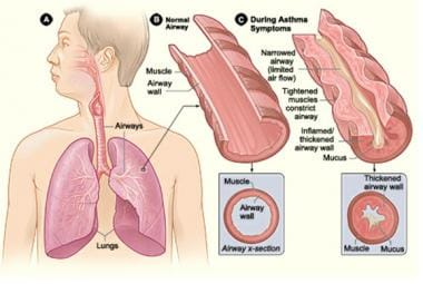 Asthma in Older Adults: Background, Anatomy, Pathophysiology