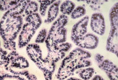 Histologic appearance of a choroid plexus papillom