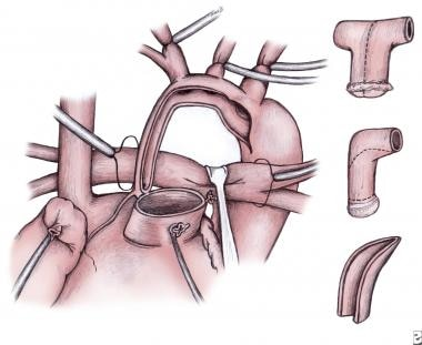 The ascending aorta is opened and sutured to the a