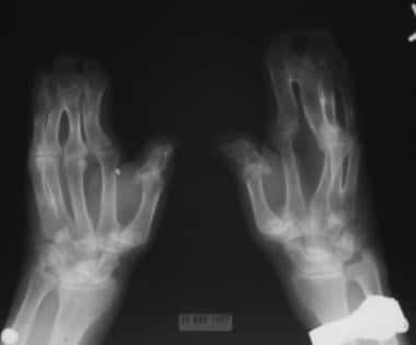 Note the osseous syndactyly involving the second,
