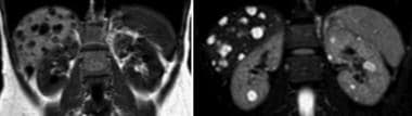 T1- and T2-weighted MRIs demonstrating bilateral r