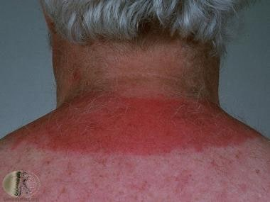 Solar Urticaria: Background, Epidemiology, Patient Education
