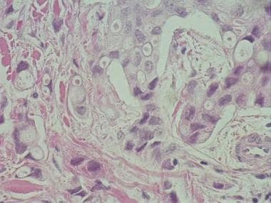 Breast cancer metastasis with hyperchromatic cells