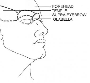 Forehead subunits. Illustrated by Charles Norman.