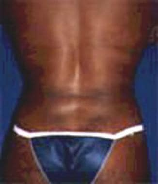 Patient 2 after ultrasonic-assisted liposuction(us
