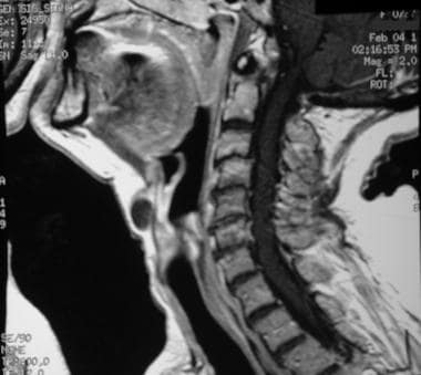 A sagittal T1-weighted postcontrast image in the s