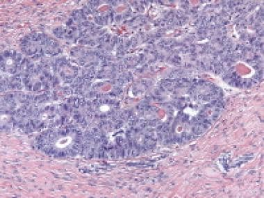 Endometrioid carcinoma simulating an adult granulo
