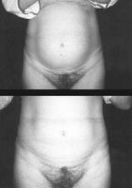 Top, preoperative view. Bottom, postoperative view