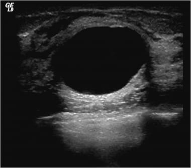 Ultrasound shows an anechoic cyst with smooth marg