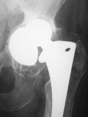 Image from a patient who had a cemented total hip