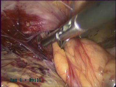 Laparoscopic inguinal hernia repair: TAPP. Dissect