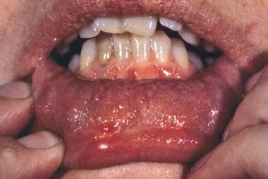 Clinical image of the oral mucosa of a patient wit