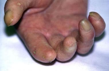Hand of a woman with scleroderma of several years'