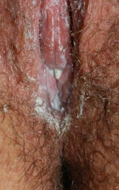 Vulvar candidiasis. Bright erythema with scaling,