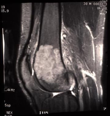 Sagittal T2-weighted MRI shows giant cell tumor wi