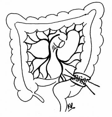 Divided descending colon and rectum are reanastomo