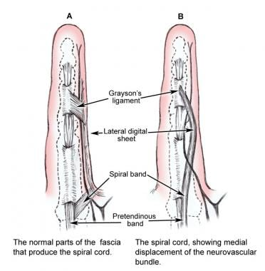 Normal parts of the fascia that produce the spiral