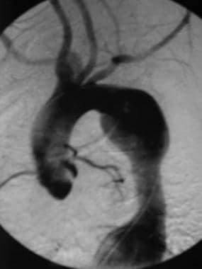 Aortogram of a 15-year-old girl with Takayasu arte