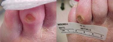Diabetic ulcer of left fourth toe associated with