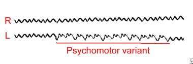 Example of the psychomotor variant (rhythmic harmo