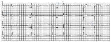 This ECG shows some typical abnormalities that may