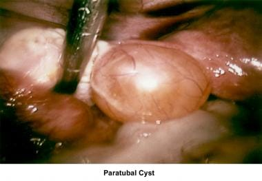 Infertility. Paratubal cyst. Image courtesy of Jai