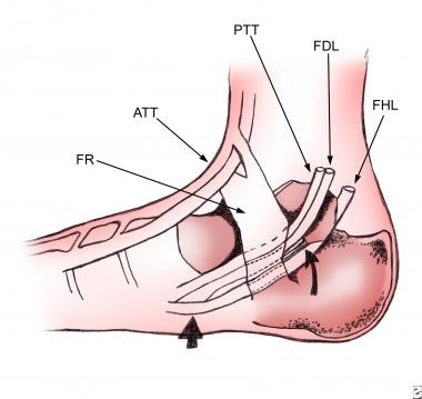 Ankle, tibialis posterior tendon injuries. Drawing