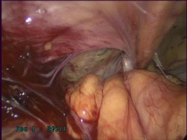 Laparoscopic inguinal hernia repair: TAPP. Reducti