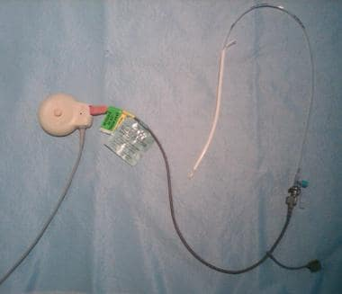 An intrauterine pressure catheter and cable.