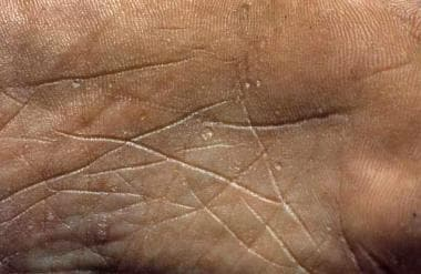 Clinical image of palmar keratoses in a patient wi