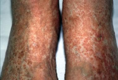 In systemic sclerosis, skin hyperpigmentation of t