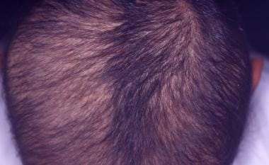 Bizarre-patterned lesion covered with short hairs