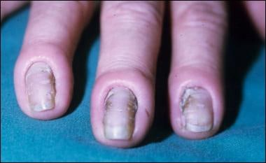 Chronic paronychia. Edema and erythema of the nail