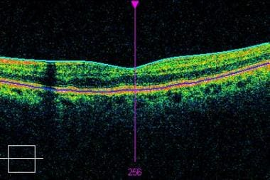 High-definition optical coherence tomography scan