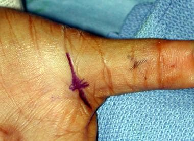 Incision for trigger thumb release placed in metac
