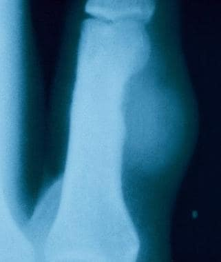 Radiograph demonstrates the bony erosion associate
