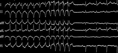 Termination of ventricular tachycardia (VT) with o