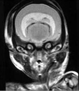 Early fetal magnetic resonance image shows alobar