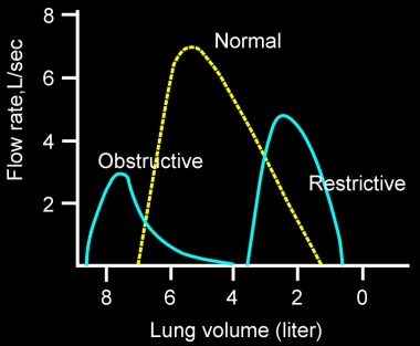 Idealized flow volume curves for normal, obstructi