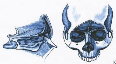 Anterior and lateral views of the frontal sinus. T