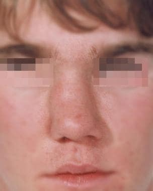 Complications of Rhinoplasty: Background, Problem, Epidemiology