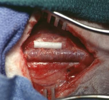 Intraoperative picture showing a solid dissolvable