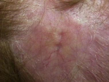 Close-up view of patient with alopecia neoplastica