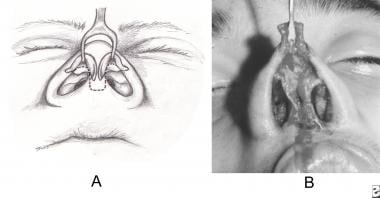 A. Nostril and columellar rim incision for complet