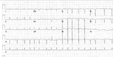 ECG showing multifocal atrial tachycardia (MAT).