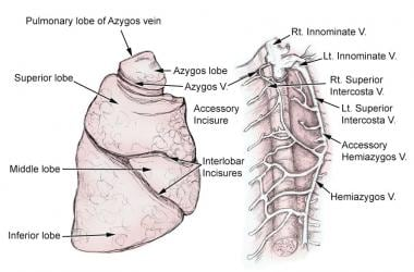 Azygous lobe. This lobe was created by azygous vei