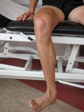 Checking rotation of the knee in active mobilizati