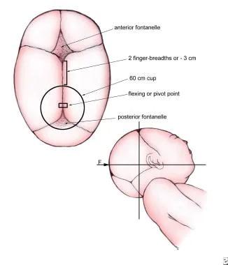 Cranial Flexion Or Pivot Point