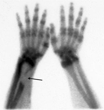 Technetium Tc 99m bone scan demonstrates a large a